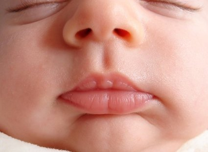 skóra dziecka