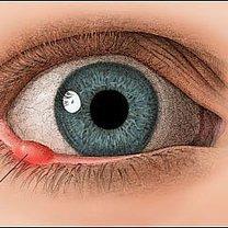 jak leczyć jęczmień na oku?