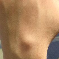 Cysta galaretowata - torbiel galaretowata, ganglion