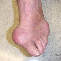 Dna moczanowa - zdjęcie stopy
