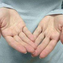 potliwość rąk