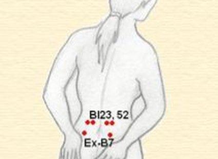Bl 23, 52, Ex-B7