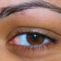 spuchnięte oko