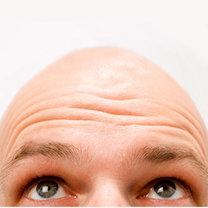 ogolona głowa