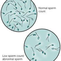 ilość plemników w spermie
