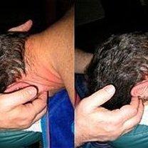 masaż żuchwy - krok 4.