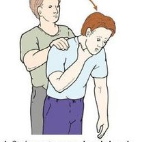 Chwyt Heimlicha