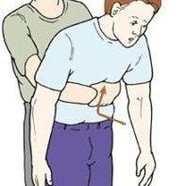 Chwyt Heimlicha 3