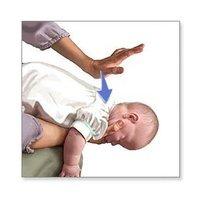 Chwyt Heimlicha na dziecku