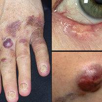 Inne formy raka skóry
