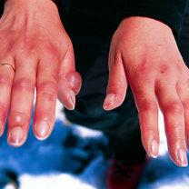 odmrożenie rąk
