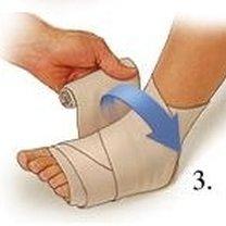 Bandażowanie kostki 3
