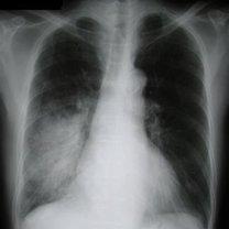 zapalenie płuc - rentgen