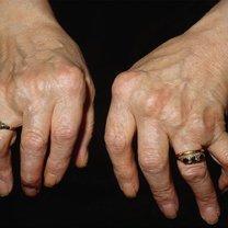 młodzieńcze reumatoidalne zapalenie stawów