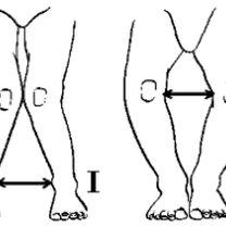 Kolana koślawe i kolana szpotawe