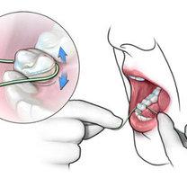 Czyszczenie zębów nitką