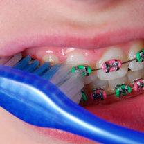 Mycie zębów z aparatem ortodontycznym