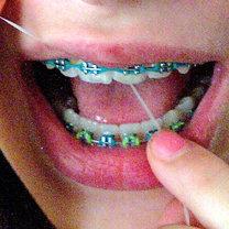 Nitkowanie zębów z aparatem