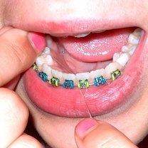 Zęby z aparatem