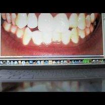 Prostowanie zębów w Photoshop