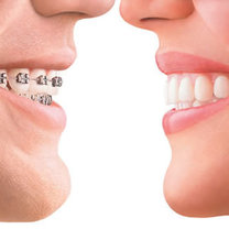 Prostowanie zębów