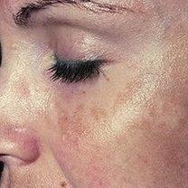 Przebarwienia na twarzy
