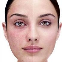 zaczerwienienia na twarzy