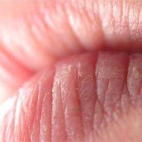 Spierzchnięte usta