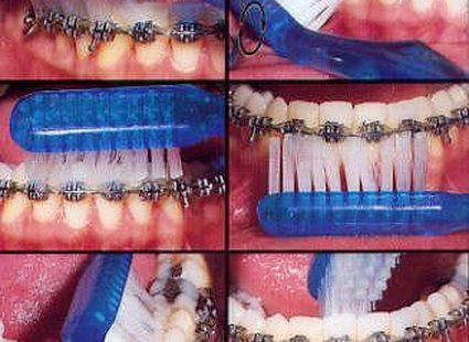 Mycie zębów z aparatem