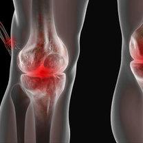 objawy tocznia - bóle stawów