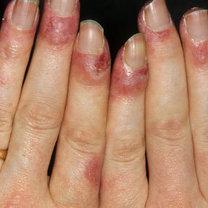 objawy tocznia - zmiany w płytce paznokcia