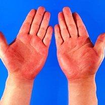 czerwone dłonie