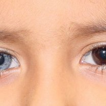 heterochromia całkowita