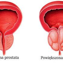 prostata - normalna i powiększona