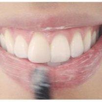 wygładzanie ust