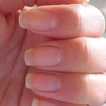 zmyte paznokcie