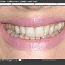 Wybielanie zębów na zdjęciu Photoshop 5