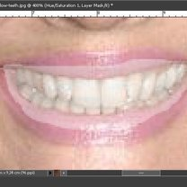 Wybielanie zębów na zdjęciu Photoshop 8