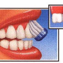 Dokładne szczotkowanie zębów