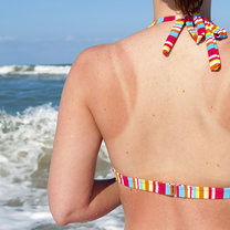 Sposoby na poparzenia słoneczne
