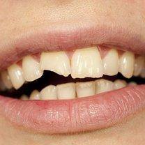ukruszony ząb