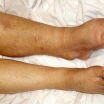 obrzek limfatyczny