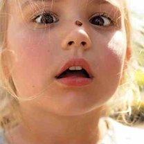 robak na nosie dziecka