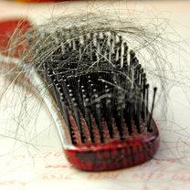 7 naturalnych sposobów, aby zatrzymać wypadanie włosów