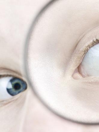 oczy a zdrowie