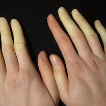 Syndrom raynauda objawy