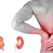Jak obniżyć kwas moczowy w organizmie