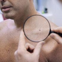 Sucha skóra przyczyny