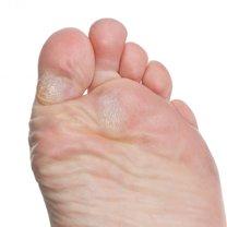 Modzele na stopach zapobieganie