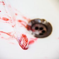 Domowe sposoby na krwawiące dziąsła